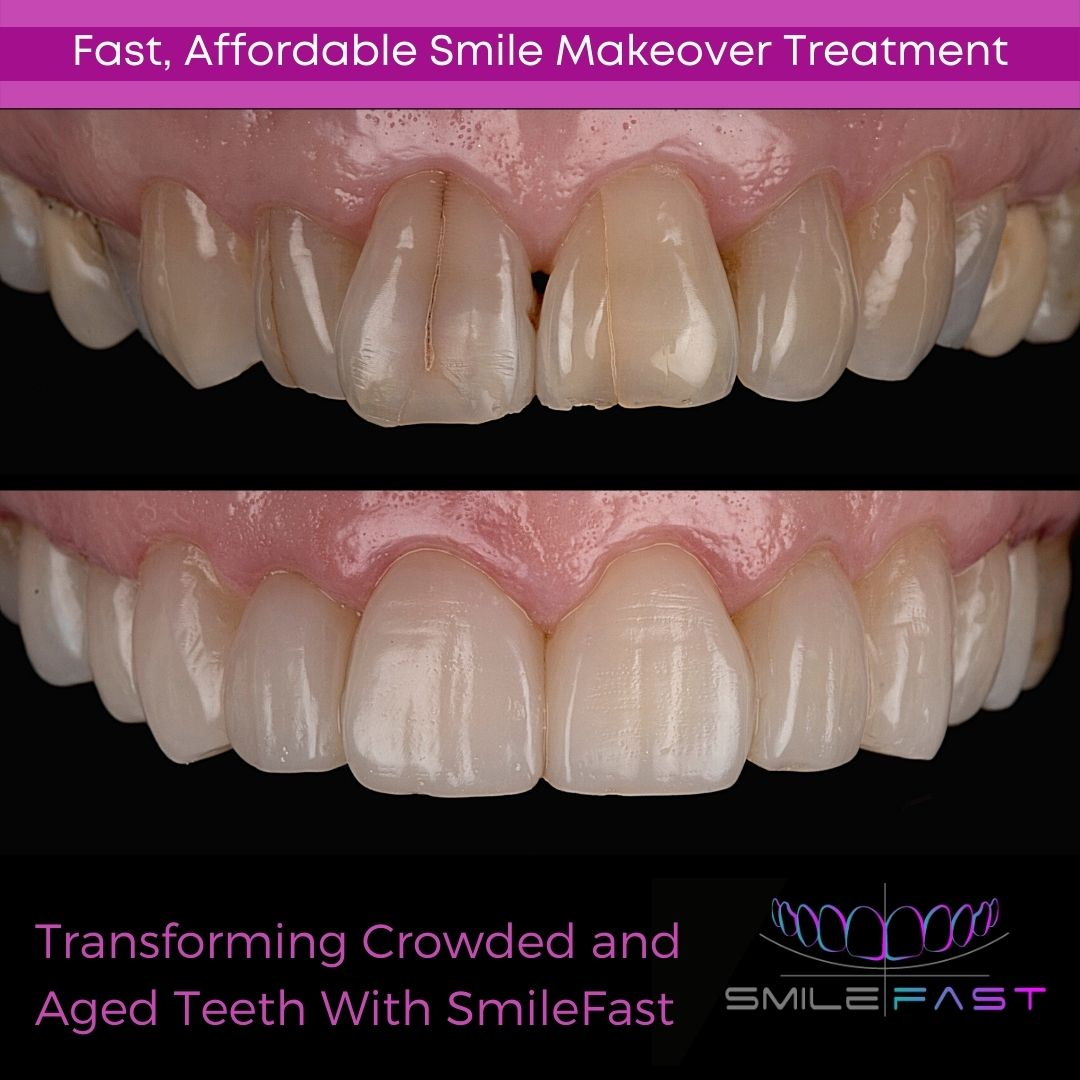 SmileFast Composite Veneers at Southport Road Dental